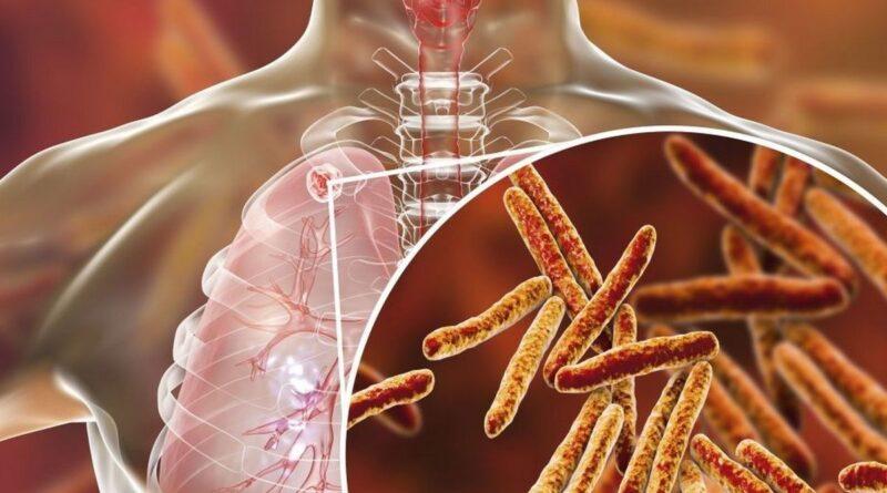 Лечение инфильтративного туберкулеза